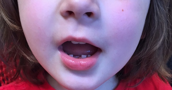 missing baby tooth being replaced by permanent tooth